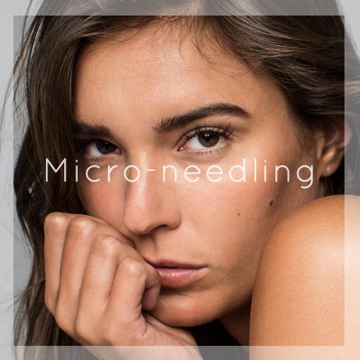 Micro Needling 2