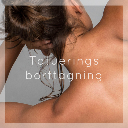 Tatueringsborttagning 2